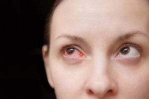 one red eye could mean a serious vision problem in harrisburg il